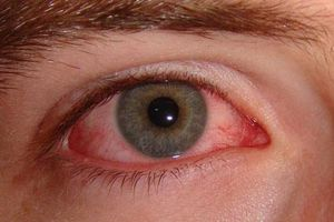 Đề phòng đau mắt đỏ mùa nắng nóng