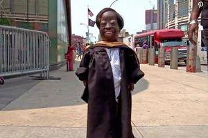 Cô gái cao 90 cm kiên cường chống chọi bệnh hiếm suốt 24 năm và gặt hái thành công đáng ngưỡng mộ