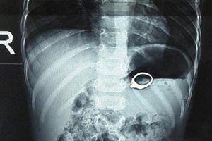 Nghệ An: Cứu sống bé trai 13 tháng tuổi nuốt nhẫn đính đá vào dạ dày