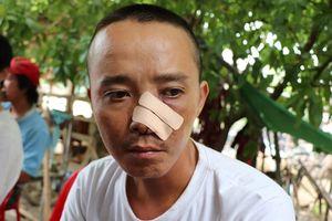 Phút 20 kẻ lạ mặt truy sát 3 cha con ở Quảng Nam