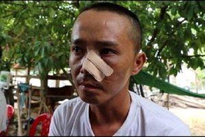 Nạn nhân kể lại 3 lần bị truy sát khiến cha chết, con trọng thương