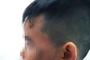 Đuổi gà trong chung cư, cháu bé 7 tuổi bị đánh bầm mặt