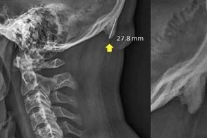 Sử dụng điện thoại nhiều có thể khiến phát triển xương thừa sau gáy
