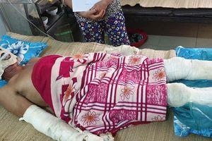 Phát nổ do rò rỉ khí ga trong đám tang, 5 người bỏng nặng