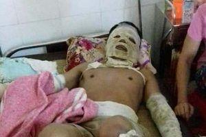 Thanh Hóa: Rò khí ga, 5 người bị bỏng nặng