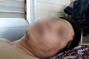 Vụ gãy xương ngực bị khoan chân ở BV Chợ Rẫy: 'Nhầm lẫn giữa bệnh nhân này và bệnh nhân khác'