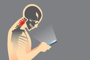 Sử dụng điện thoại sai cách có thể khiến người dùng 'mọc đuôi' sau đầu