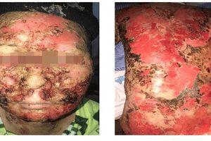 Mất 30 triệu 'cúng' chữa bệnh về da, một phụ nữ bị suy kiệt