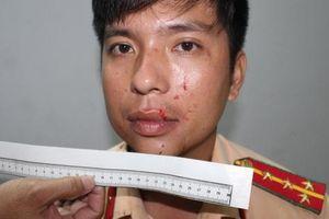 Khởi tố nhóm thanh niên nhục mạ, tấn công CSGT