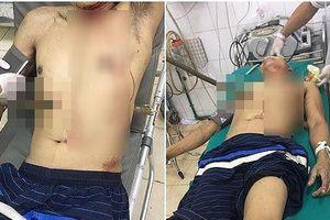 Trèo cây trượt chân, người đàn ông 50 tuổi bị cọc gỗ xuyên thấu ngực bụng