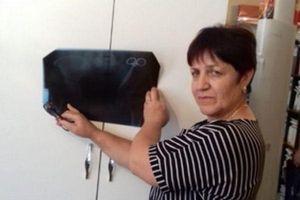 Người phụ nữ ngã ngửa khi phát hiện kẹp phẫu thuật bị bỏ quên 23 năm trong bụng