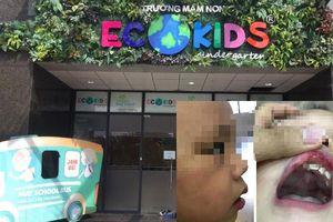 Cận cảnh Trường mầm non Ecokids nơi bé trai 3 tuổi bị cô giáo đánh tím mặt, tụ máu môi