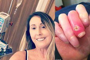 Mắc bệnh lạ, người phụ nữ buộc phải cắt ngón tay, ngón chân 30 lần