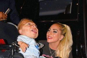 Rớt nước mắt khoảnh khắc Lady Gaga ôm hôn người hâm mộ khuyết tật sau hậu trường đêm diễn
