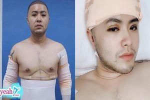 Những hình ảnh đầu tiên của Akira Phan sau phẫu thuật thẩm mỹ, showbiz Việt sắp chào đón 'Hoàng tử Ả Rập'?