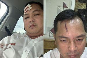 Giang hồ 'vây nhốt' ô tô chở nhóm cảnh sát: Người bị đánh rách trán yêu cầu khởi tố vụ án