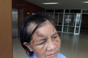 Công an vào cuộc vụ cháu trói tay, đánh bà ngoại gãy 5 xương sườn ở Quảng Ninh