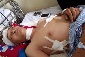 Hà Nội: Hai thanh niên bị nhóm người lạ mặt đuổi chém trong đêm