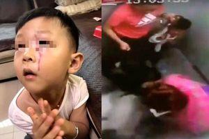 Cậu bé 3 tuổi bị chó Alaska tấn công trong thang máy