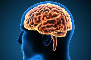 Bị nhức đầu dai dẳng do nhiều mảnh vụn gỗ mắc kẹt trong não