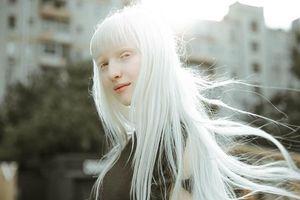 Vẻ đẹp của những người mẫu bạch tạng nổi tiếng