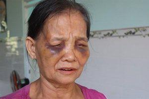 Bình Phước: Nghi vấn con dâu bạo hành mẹ chồng bầm tím 2 mắt rồi dẫn con bỏ trốn