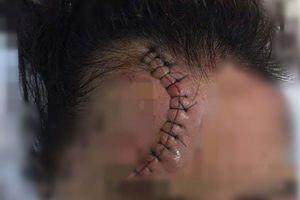 Hà Nội: Công an vào cuộc trích xuất camera truy tìm ô tô CX5 đâm trọng thương cô gái trong đêm
