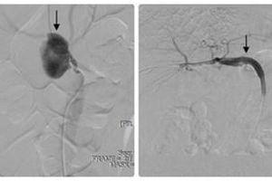 Xử lý phình động mạch thân tạng hiếm gặp tại Bệnh viện Quân y 103