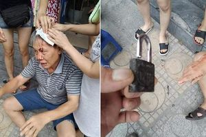 Vụ cụ ông bị ổ khóa rơi trúng đầu ở Hà Nội: Văn hóa chung cư bao giờ mới được cải thiện