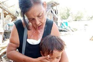 Người phụ nữ khổ sở vì miệng dính trên ngực suốt 15 năm