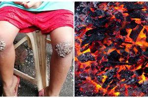Xót lòng bé gái 8 tuổi bị mẹ bắt quỳ lên than hồng vì quên mang cặp về nhà