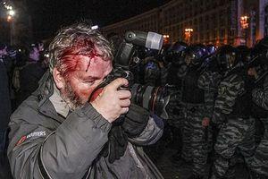 Bảo vệ nhà báo trong quá trình tác nghiệp là đòi hỏi cấp thiết