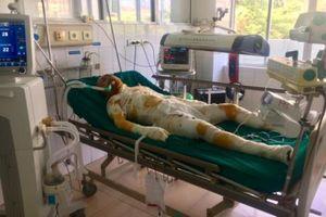 Vụ phóng hỏa đốt nhà người tình ở Sơn La: Các nạn nhân đang rất nguy kịch