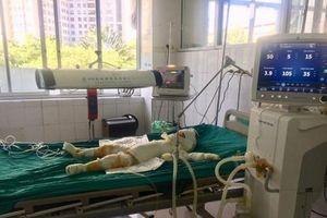 Vụ tưới xăng đốt 5 người trong nhà ở Sơn La: Bé 3 tuổi đã tử vong