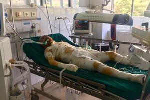Vụ phóng hỏa đốt nhà người tình ở Sơn La: Thêm một nạn nhân tử vong