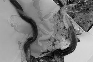 Cứu thai nhi bị dây rốn thắt nút gây tắc mạch