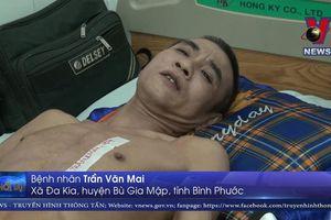 Phát hiện 7 cục sỏi khổng lồ nặng 0,5 kg trong bụng bệnh nhân