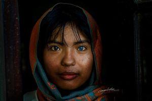 Cô gái Việt kỳ lạ với đôi mắt hai màu vào đại học