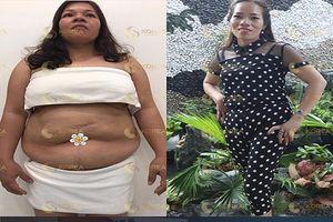 Mẹ 2 con chứng minh không cần nhịn ăn kham khổ vẫn giảm ngoạn mục 22 ký