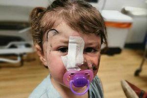 Bé gái 2 tuổi suýt mù mắt do bị chó cắn