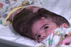 Cặp song sinh dính liền sọ được tách đôi an toàn sau 50 giờ phẫu thuật