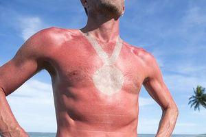 Cảnh báo xu hướng làm đẹp nguy hiểm: 'Hình xăm cháy nắng'