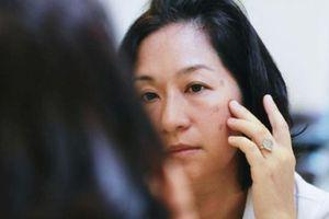 Tìm hiểu giai đoạn hình thành nám da và cách điều trị hiệu quả