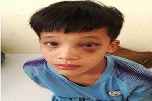Nghịch súng tự chế, bé trai bị đinh kim loại ghim vào hốc mắt