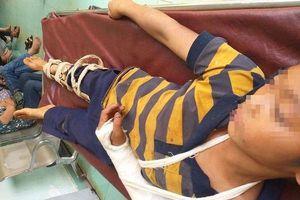 Bé trai 11 tuổi ở Đắk Nông nghi bị hàng xóm đánh trọng thương phải nhập viện