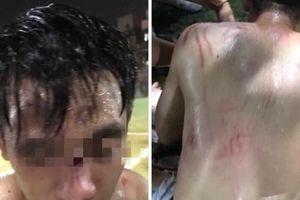 Hà Nội: Đá bóng không 'giỏi' đội bóng 'xăm trổ' quay ra đá người
