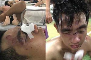 Mâu thuẫn khi đá bóng giao lưu, 1 thanh niên bị đánh nhập viện