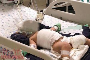 Tự chữa bệnh ở nhà theo kinh nghiệm dân gian, trẻ sơ sinh bị bỏng nặng phải nhập viện