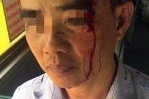 Tài xế xe buýt Công ty Vận tải hành khách Hải Hưng đánh người nhập viện