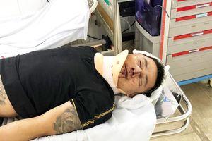 Công an điều tra vụ khách hàng bị đánh hộc máu tại trụ sở Công ty Alibaba